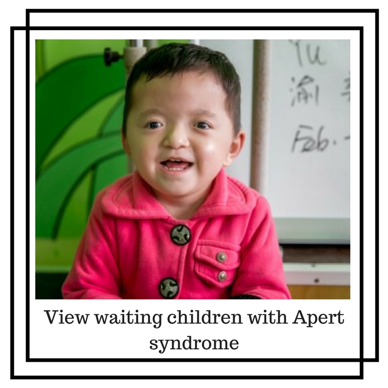 View waiting children with Apert Syndrome