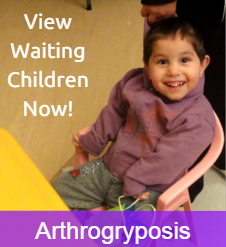 Arthrogryposis Adoption