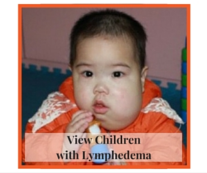 View Children with Lymphedema
