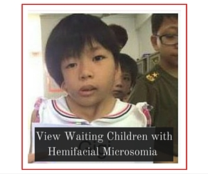 View Waiting Children with Hemifacial Microsomia
