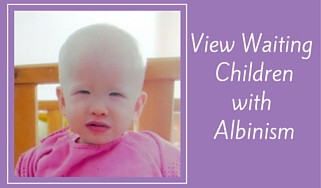 View Waiting Childrenwith Albinism